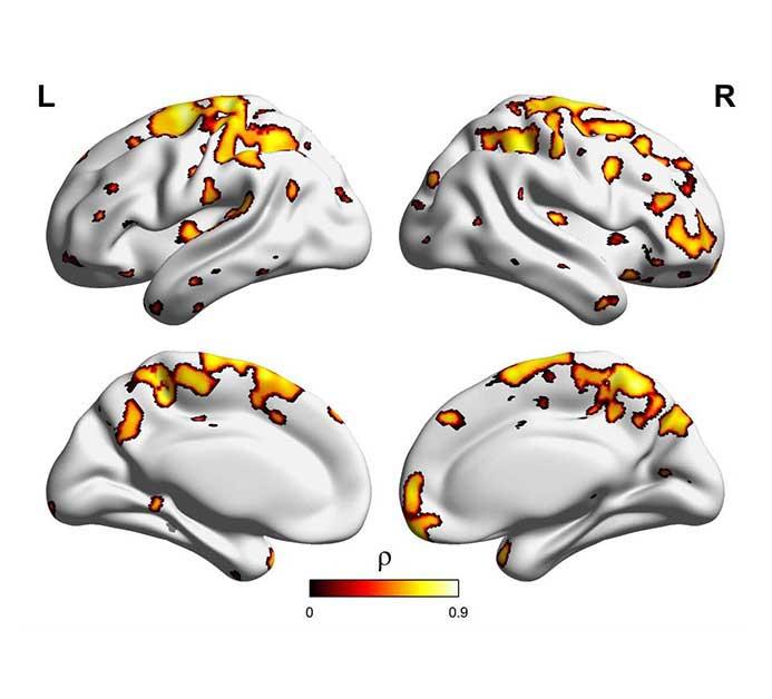 aivojen tulehdusmuutoksia
